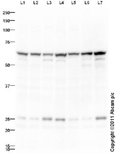 Western blot - KPNA2 antibody (ab99288)