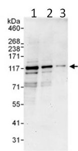 Western blot - PDE3B antibody (ab99289)