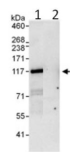 Immunoprecipitation - PDE3B antibody (ab99289)