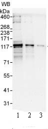 Western blot - PDE3B antibody (ab99290)