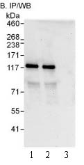 Immunoprecipitation - PDE3B antibody (ab99290)