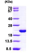 SDS-PAGE - VILIP3 protein (ab99299)
