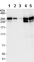 Western blot - CAD antibody (ab99312)