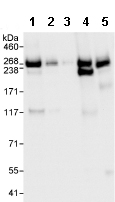Western blot - CAD antibody (ab99313)
