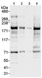 Western blot - UACA antibody (ab99323)