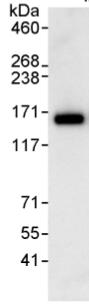 Immunoprecipitation - ANKIB1 antibody (ab99345)