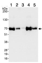 Western blot - CPSF6 antibody (ab99347)