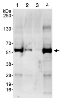 Western blot - pre-mRNA cleavage factor I (59 kDa subunit)  antibody (ab99348)