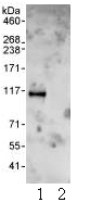 Immunoprecipitation - Skeletrophin / Mib2 antibody (ab99378)