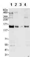 Western blot - AZI1 antibody (ab99379)