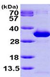 SDS-PAGE - NANP protein (ab99392)