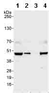 Western blot - PHD finger protein 6 antibody (ab99395)