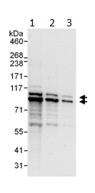 Western blot - PDE4D antibody (ab99410)