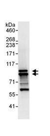 Immunoprecipitation - PDE4D antibody (ab99410)