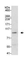 Immunoprecipitation - MSK1 antibody (ab99412)
