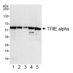 Western blot - TFIIE alpha antibody (ab99418)