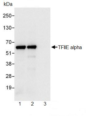 Immunoprecipitation - TFIIE alpha antibody (ab99418)