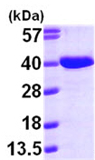 SDS-PAGE - AASDHPPT protein (ab99433)