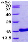 SDS-PAGE - RBP5 protein (ab99438)