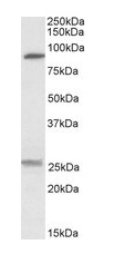 Western blot - Sodium bicarbonate transporter-like protein 11 antibody (ab99459)