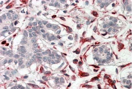 Immunohistochemistry (Formalin/PFA-fixed paraffin-embedded sections) - Anti-CXXC4 antibody (ab99464)