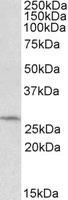 Western blot - DCUN1D1 antibody (ab99506)