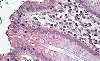 Immunohistochemistry (Formalin/PFA-fixed paraffin-embedded sections) - Anti-NKCC1 antibody (ab99558)