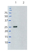 Western blot - Mouse monoclonal [K4F5]  Secondary Antibody to Rat kappa - light chain (HRP) (ab99692)