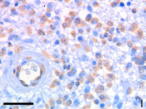 Immunohistochemistry (Formalin/PFA-fixed paraffin-embedded sections) - Anti-beta Galactosidase antibody [DC1 4C7] (ab116)