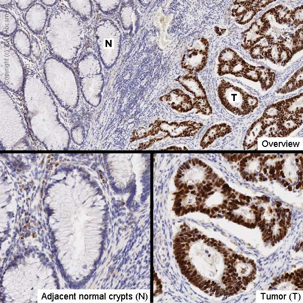 Immunohistochemistry (Formalin/PFA-fixed paraffin-embedded sections) - Anti-p53 antibody [PAb 1801] (ab28)
