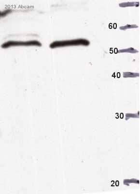 Western blot - Anti-Calreticulin antibody (ab4)