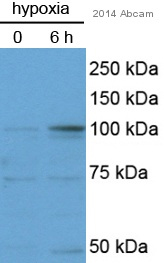 Western blot - Anti-HIF-1-alpha antibody [H1alpha67] - ChIP Grade (ab463)