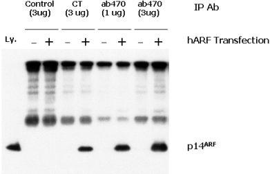 Western blot - p14ARF antibody (ab470)