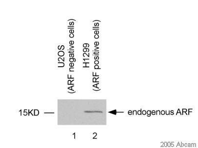 Western blot - Anti-CDKN2A/p14ARF antibody (ab470)