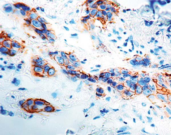 Immunohistochemistry (Formalin/PFA-fixed paraffin-embedded sections) - Anti-HSV2 antibody, prediluted (ab934)