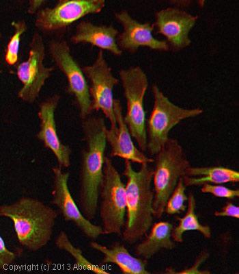 Immunocytochemistry/ Immunofluorescence - Anti-Thymidine Kinase 1 antibody [3B3.E11] (ab988)