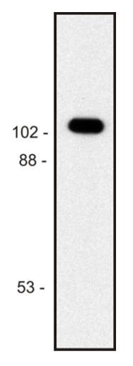 Western blot - Anti-beta Galactosidase antibody [BG-02] (ab1047)