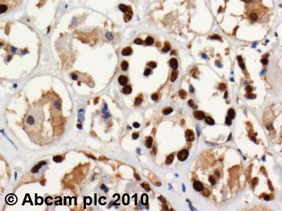 Immunohistochemistry (Formalin/PFA-fixed paraffin-embedded sections) - Anti-SET antibody (ab1183)