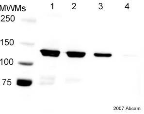 Western blot - Anti-6X His tag® antibody (HRP) (ab1187)