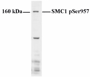 Western blot - Anti-SMC1 (phospho S957) antibody (ab1275)