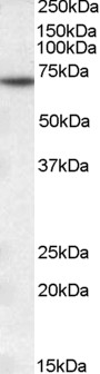 Western blot - Anti-MTM1 antibody (ab1350)