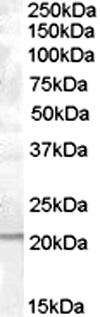 Western blot - Anti-PTP4A1 antibody (ab1368)