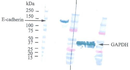 Western blot - Anti-E Cadherin antibody [HECD-1] (ab1416)