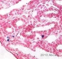 Immunohistochemistry (Frozen sections) - Anti-p53 (phospho S15) antibody (ab1431)