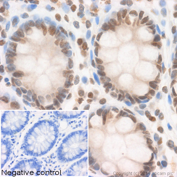 Immunohistochemistry (Formalin/PFA-fixed paraffin-embedded sections) - Anti-Histone H2B (acetyl ) antibody - ChIP Grade (ab1759)