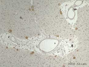 Immunohistochemistry (Formalin/PFA-fixed paraffin-embedded sections) - Anti-Thrombospondin antibody [A6.1] (ab1823)