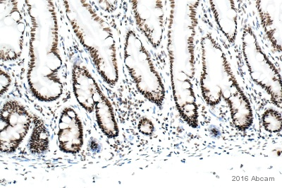 Immunohistochemistry (Formalin/PFA-fixed paraffin-embedded sections) - Anti-DNA PKcs antibody [18-2] (ab1832)