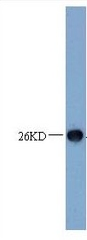 Western blot - Anti-TNFRSF18 antibody (ab10030)