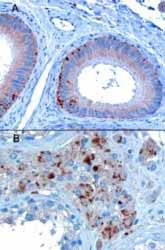 Immunohistochemistry (Formalin/PFA-fixed paraffin-embedded sections) - VPS35 antibody (ab10099)