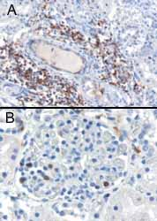 Immunohistochemistry (Formalin/PFA-fixed paraffin-embedded sections) - Anti-SH3BP1 antibody (ab10103)